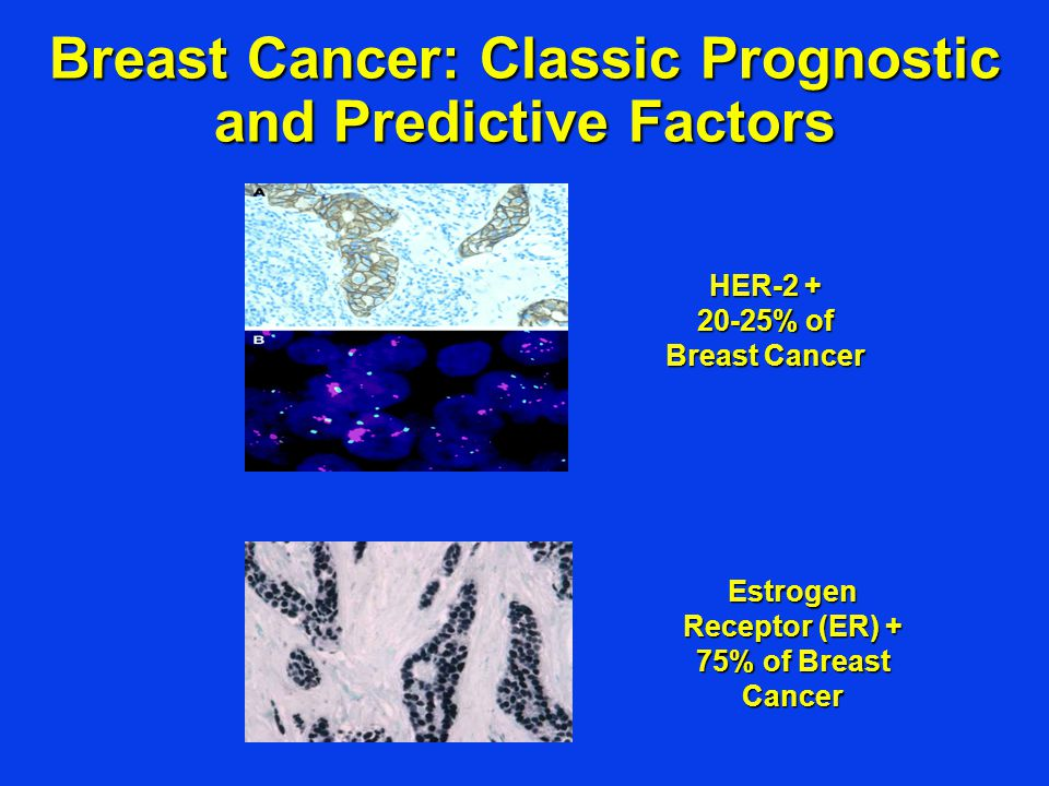Breast Cancer: Classic Prognostic and Predictive Factors Estrogen Receptor (ER) + 75% of Breast Cancer HER-2 + 20-25% of Breast Cancer