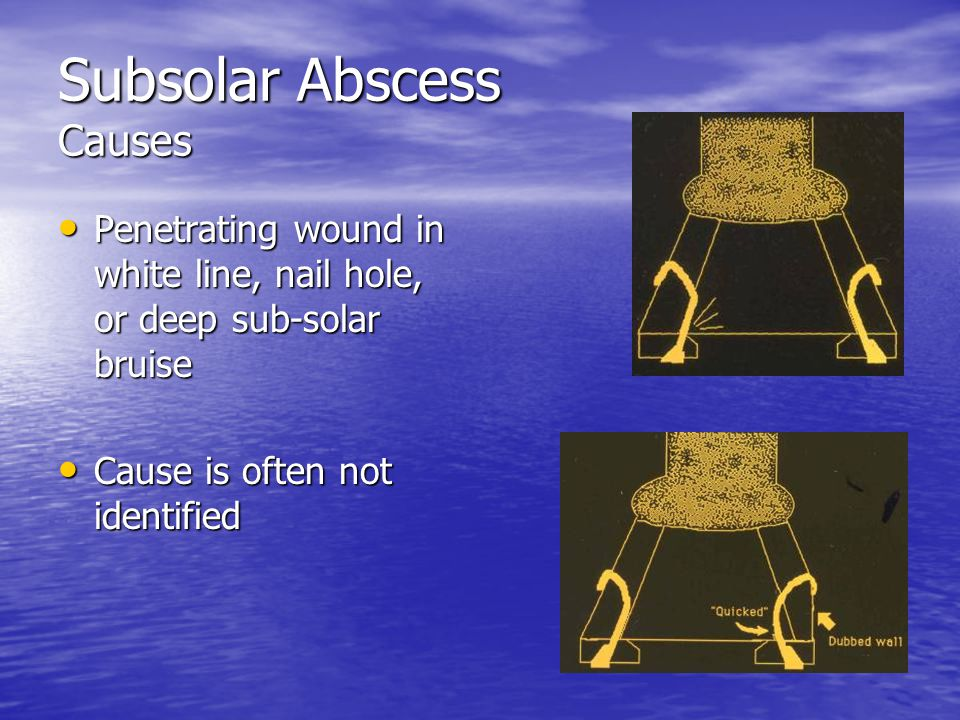Subsolar Abscess Causes Penetrating wound in white line, nail hole, or deep sub-solar bruise Penetrating wound in white line, nail hole, or deep sub-s