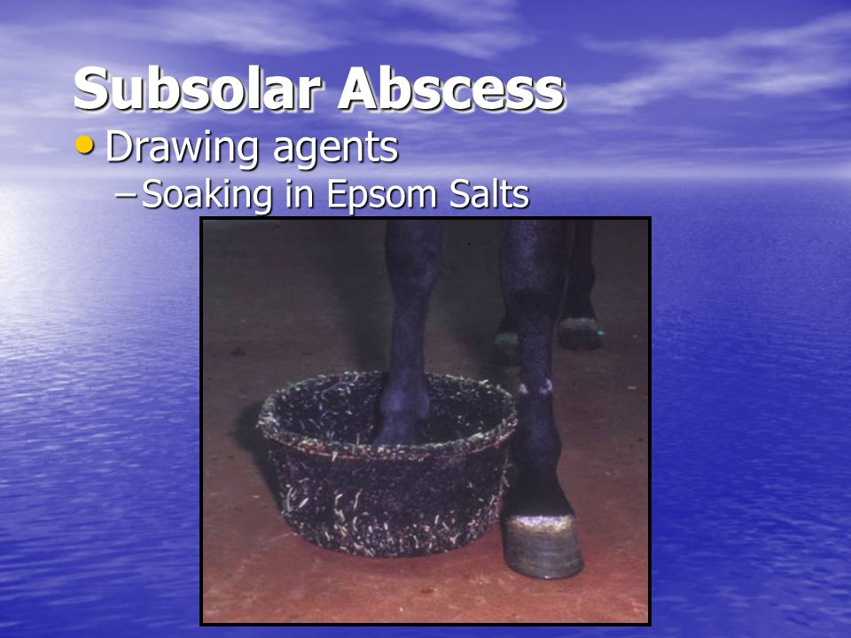Subsolar Abscess Drawing agents Drawing agents –Soaking in Epsom Salts