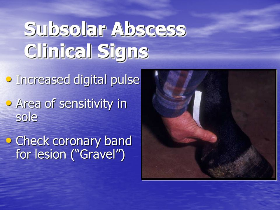 Subsolar Abscess Clinical Signs Increased digital pulse Increased digital pulse Area of sensitivity in sole Area of sensitivity in sole Check coronary