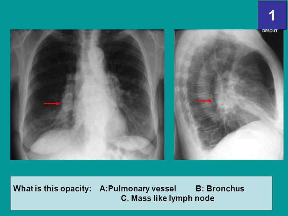1 What is this opacity: A:Pulmonary vessel B: Bronchus C. Mass like lymph node