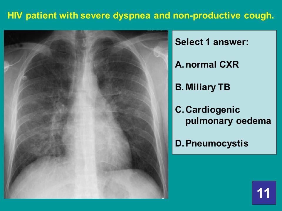 11 HIV patient with severe dyspnea and non-productive cough.