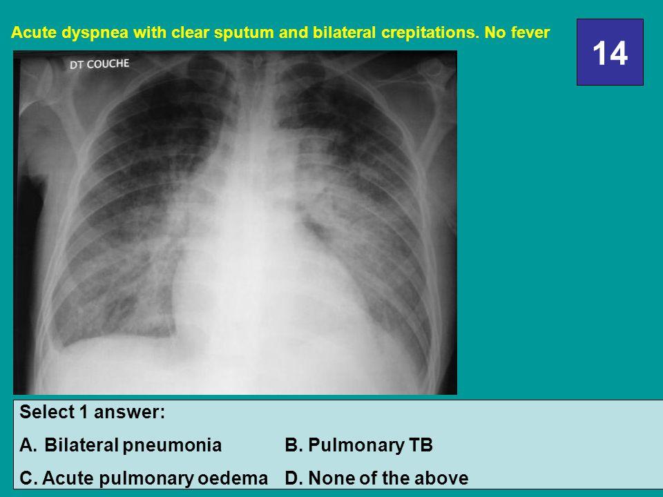 14 Select 1 answer: A.Bilateral pneumoniaB.Pulmonary TB C.