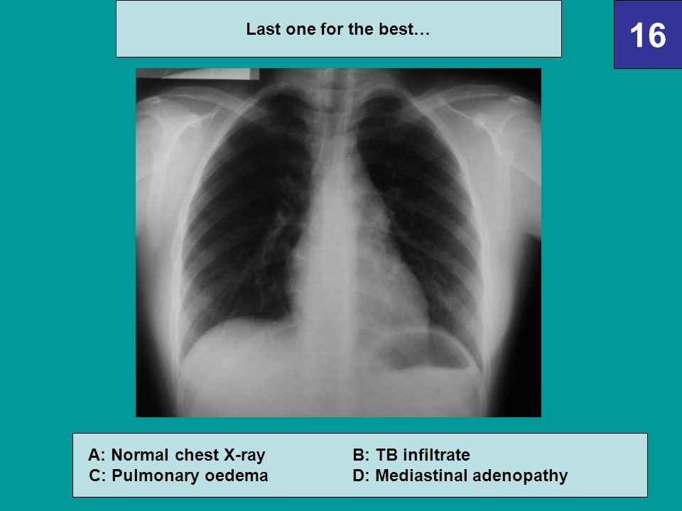 A: Normal chest X-ray B: TB infiltrate C: Pulmonary oedema D: Mediastinal adenopathy 16 Last one for the best…