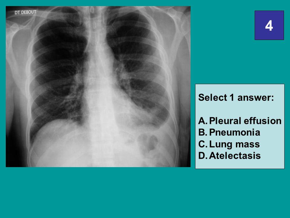 4 Select 1 answer: A.Pleural effusion B.Pneumonia C.Lung mass D.Atelectasis