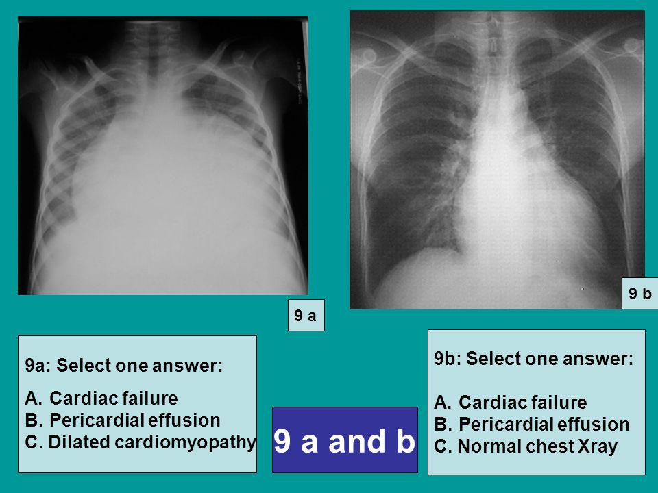 9 a and b 9a: Select one answer: A.Cardiac failure B.Pericardial effusion C.