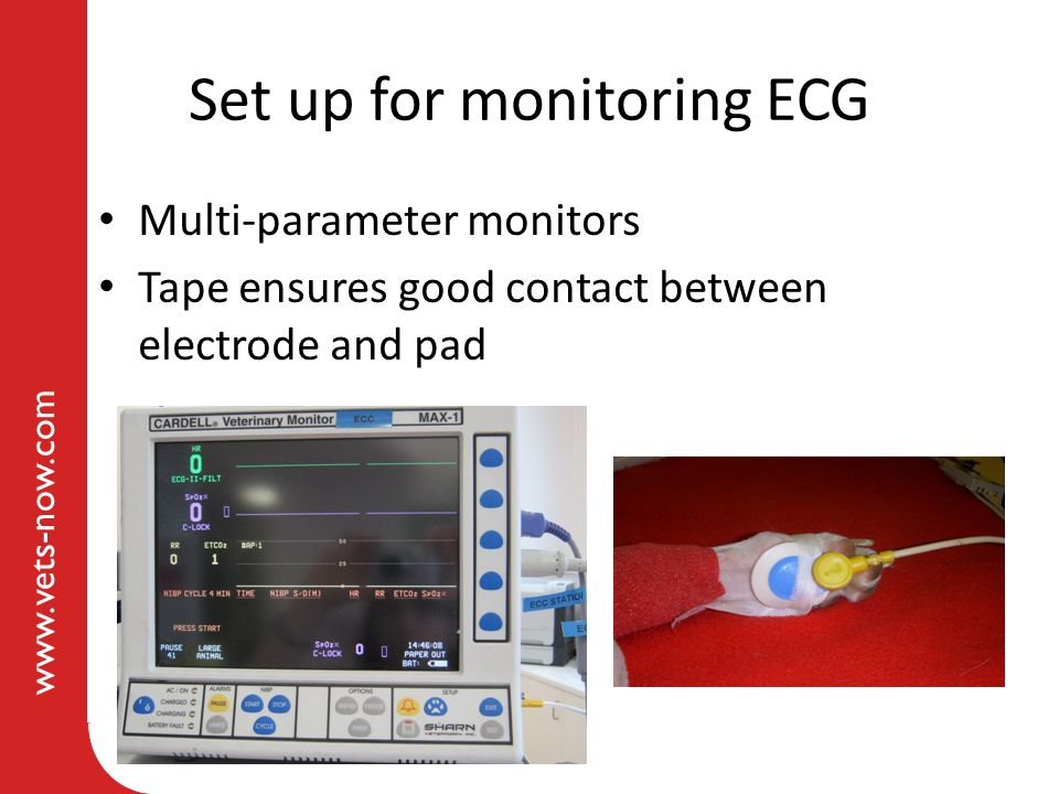 www.vets-now.com Set up for monitoring ECG Multi-parameter monitors Tape ensures good contact between electrode and pad