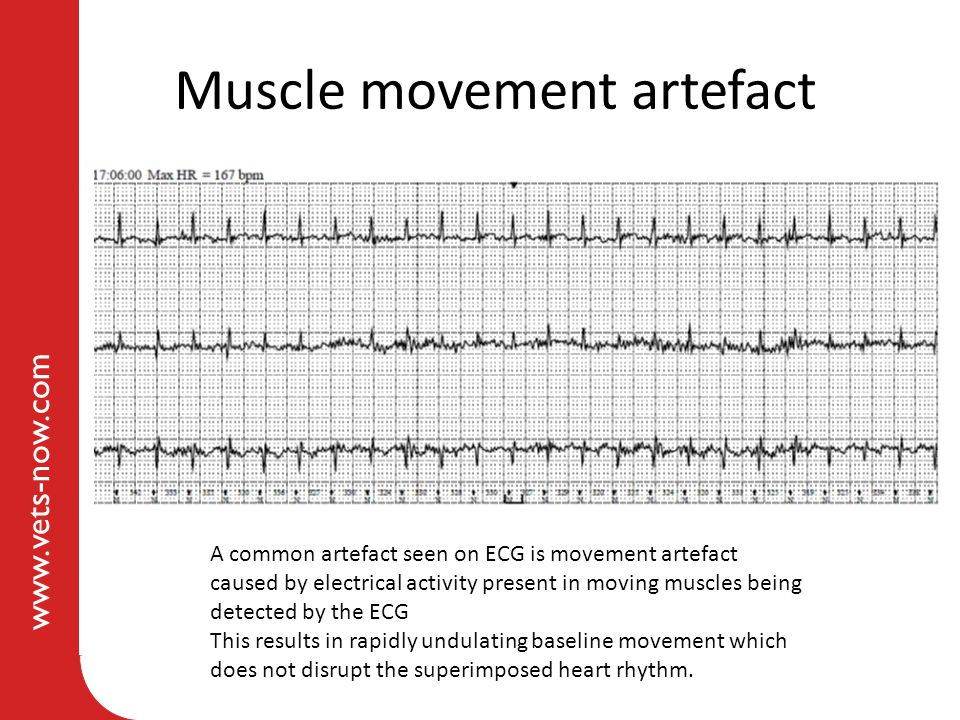 www.vets-now.com Muscle movement artefact A common artefact seen on ECG is movement artefact caused by electrical activity present in moving muscles b