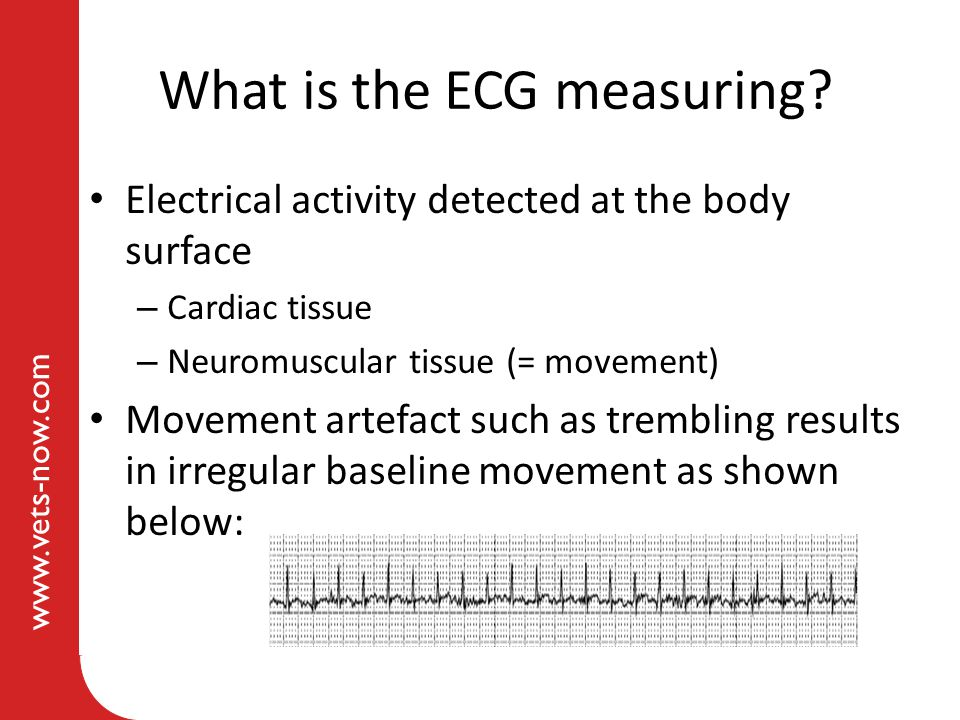 www.vets-now.com What is the ECG measuring? Electrical activity detected at the body surface – Cardiac tissue – Neuromuscular tissue (= movement) Move
