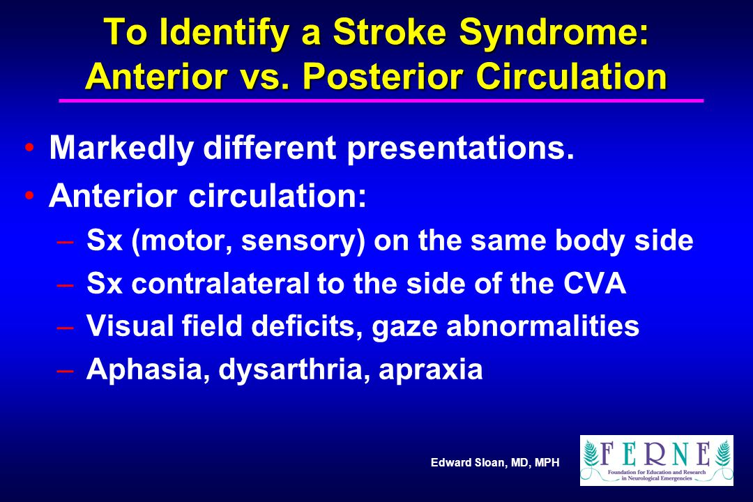 Edward Sloan, MD, MPH To Identify a Stroke Syndrome: Anterior vs. Posterior Circulation Markedly different presentations. Anterior circulation: – Sx (
