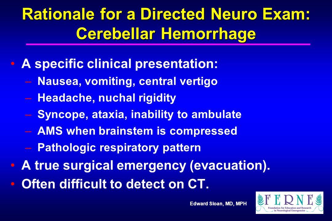 Edward Sloan, MD, MPH Rationale for a Directed Neuro Exam: Cerebellar Hemorrhage A specific clinical presentation: – Nausea, vomiting, central vertigo