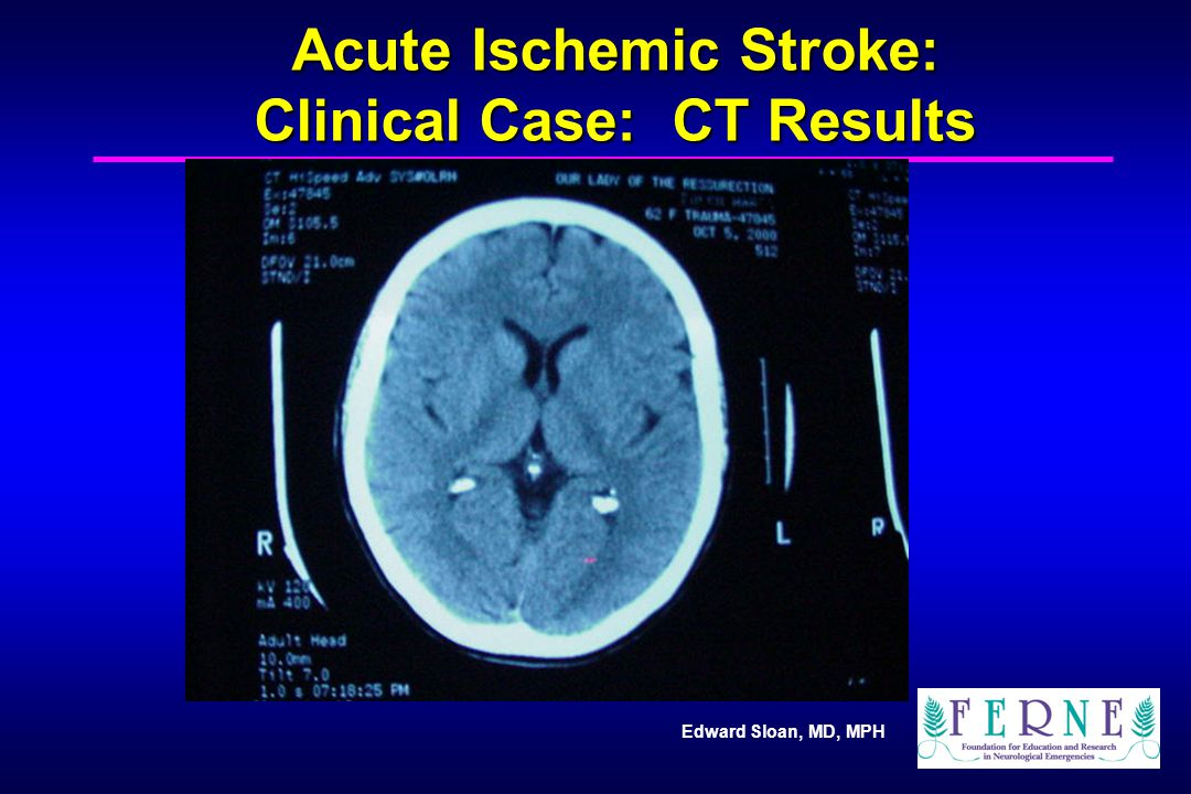 Edward Sloan, MD, MPH Acute Ischemic Stroke: Clinical Case: CT Results