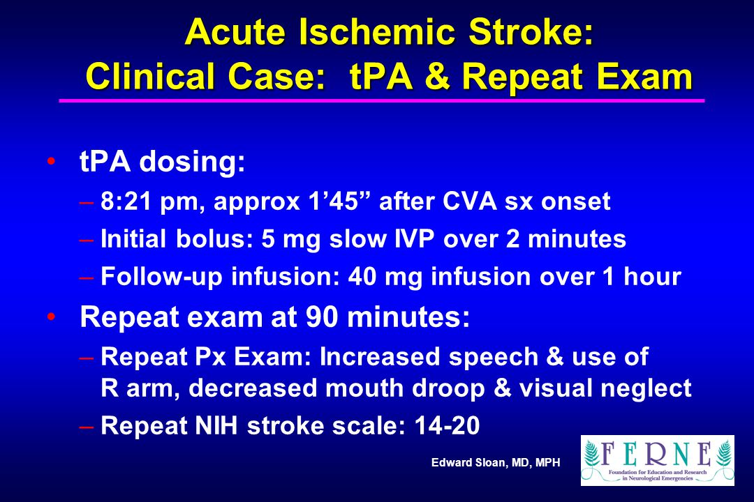 """Edward Sloan, MD, MPH Acute Ischemic Stroke: Clinical Case: tPA & Repeat Exam tPA dosing: –8:21 pm, approx 1'45"""" after CVA sx onset –Initial bolus: 5"""