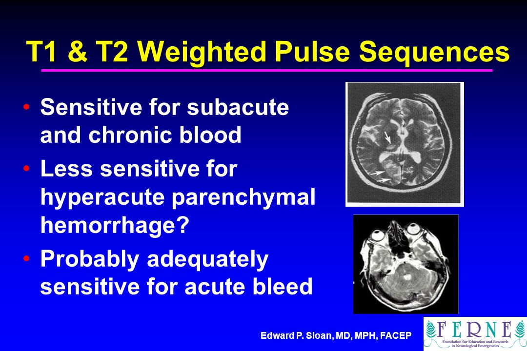 Edward P. Sloan, MD, MPH, FACEP T1 & T2 Weighted Pulse Sequences Sensitive for subacute and chronic blood Less sensitive for hyperacute parenchymal he