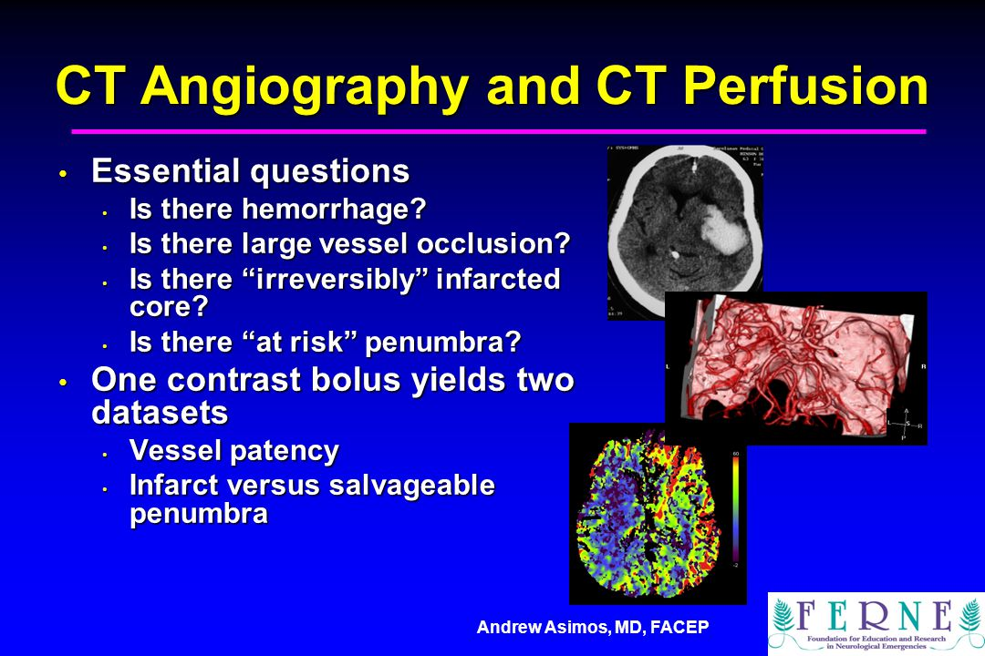 Andrew Asimos, MD, FACEP CT Angiography and CT Perfusion Essential questions Essential questions Is there hemorrhage? Is there hemorrhage? Is there la