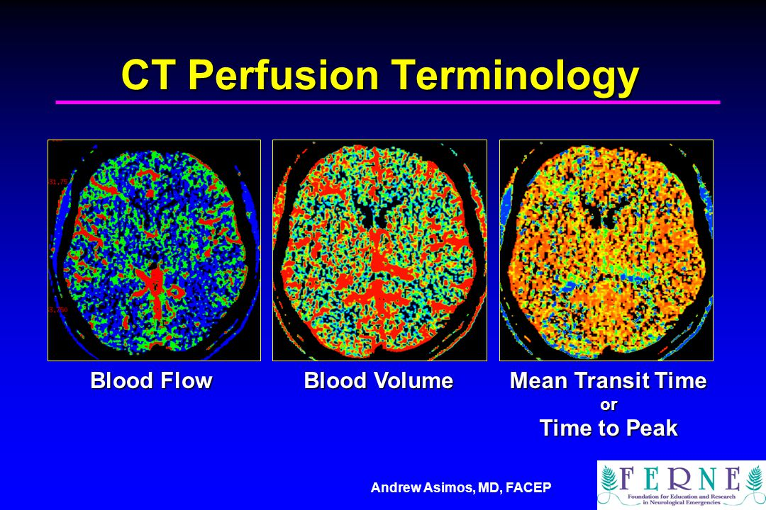 Andrew Asimos, MD, FACEP CT Perfusion Terminology Blood Flow Blood Volume Mean Transit Time or Time to Peak