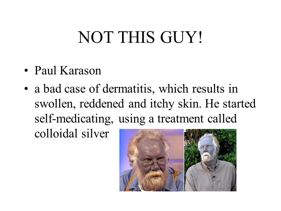 NOT THIS GUY! Paul Karason a bad case of dermatitis, which results in swollen, reddened and itchy skin. He started self-medicating, using a treatment