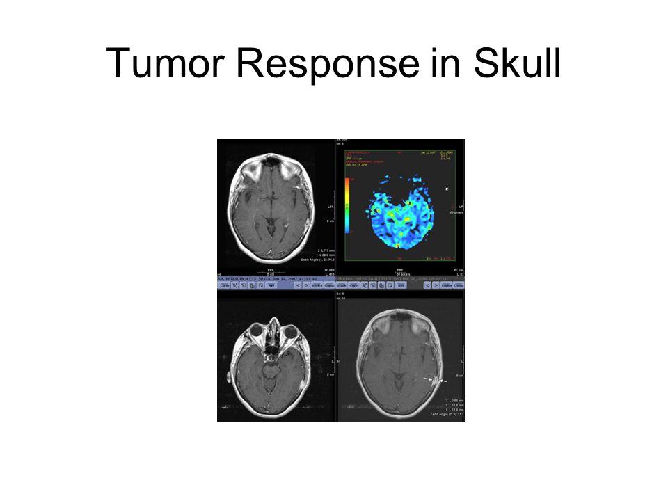 Tumor Response in Skull