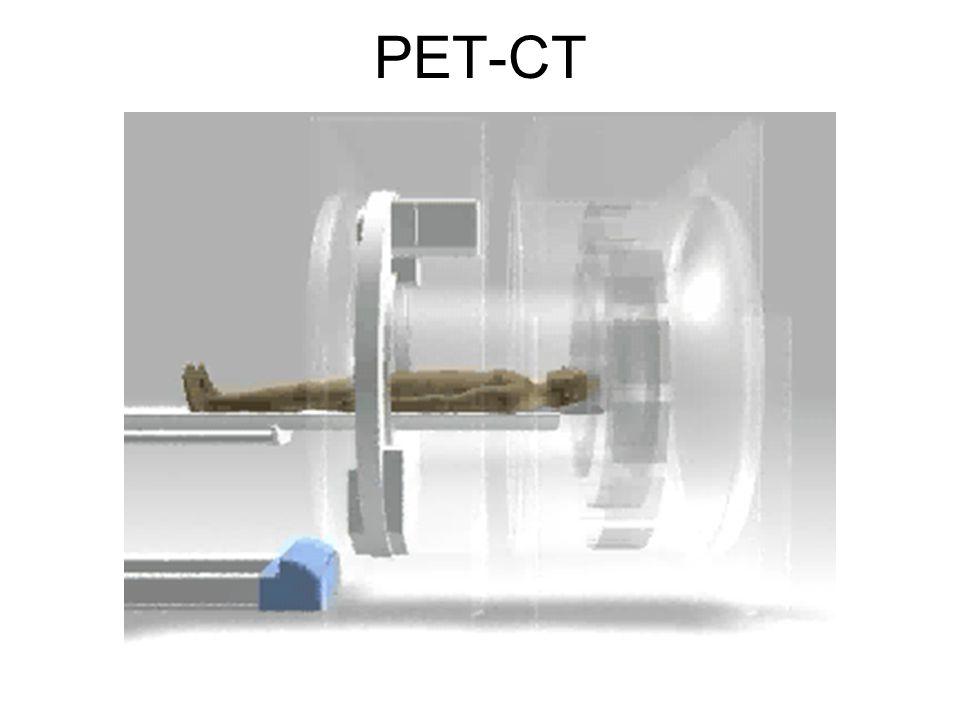 Cu-64 Trastuzumab 24 h CT- T9 & rib lesionAxial PET– no visualization of T9 & rib lesion