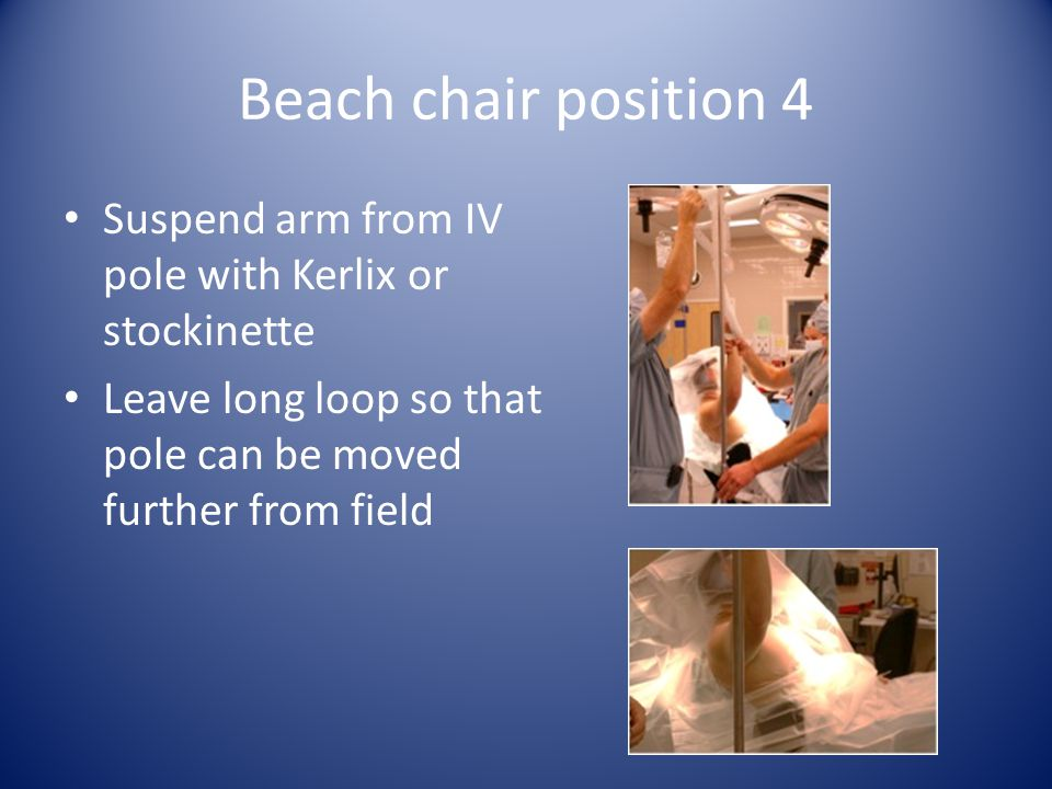Beach chair position 4 Suspend arm from IV pole with Kerlix or stockinette Leave long loop so that pole can be moved further from field