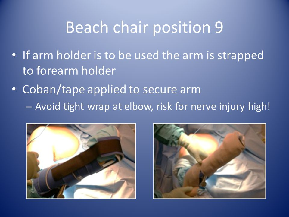 Beach chair position 9 If arm holder is to be used the arm is strapped to forearm holder Coban/tape applied to secure arm – Avoid tight wrap at elbow, risk for nerve injury high!