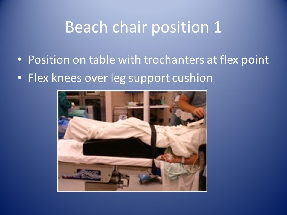 Beach chair position 1 Position on table with trochanters at flex point Flex knees over leg support cushion