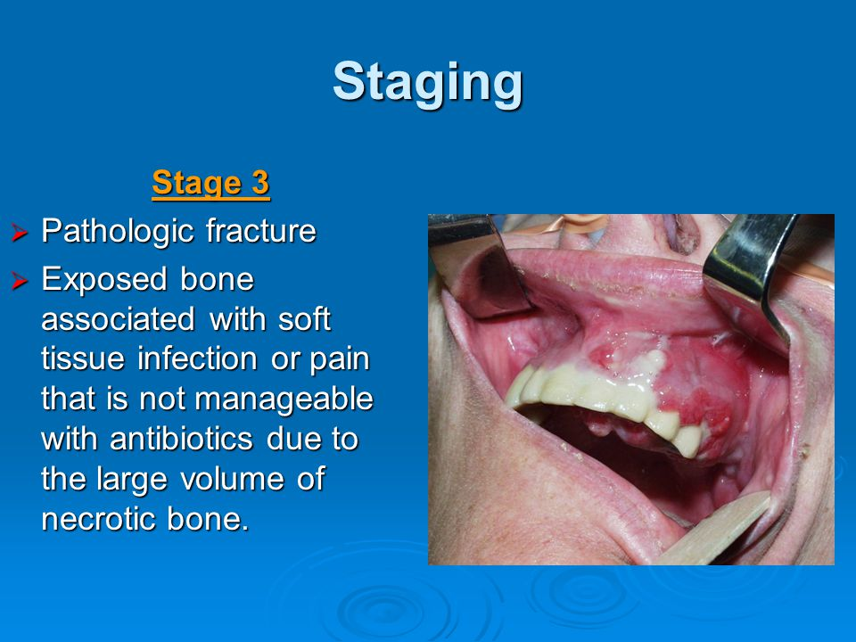 Staging Stage 3  Pathologic fracture  Exposed bone associated with soft tissue infection or pain that is not manageable with antibiotics due to the