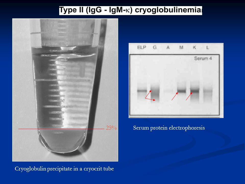 Cryoglobulin precipitate in a cryocrit tube Serum protein electrophoresis25%