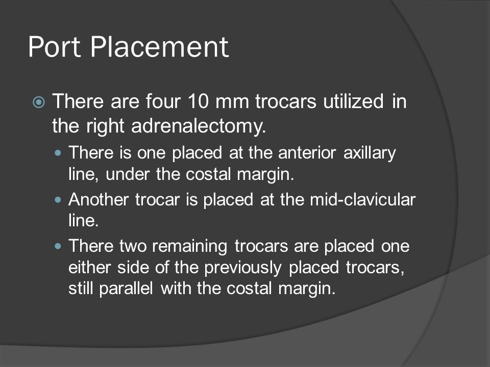 Port Placement  There are four 10 mm trocars utilized in the right adrenalectomy. There is one placed at the anterior axillary line, under the costal