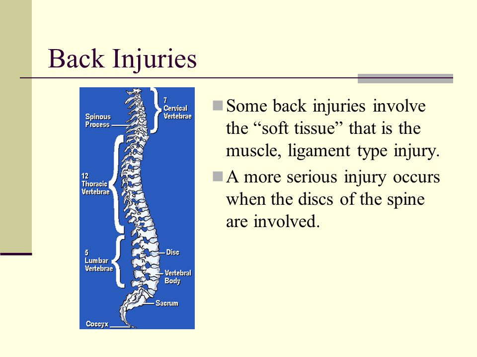 "Back Injuries Some back injuries involve the ""soft tissue"" that is the muscle, ligament type injury. A more serious injury occurs when the discs of th"