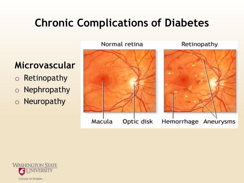 Chronic Complications of Diabetes Microvascular o Retinopathy o Nephropathy o Neuropathy