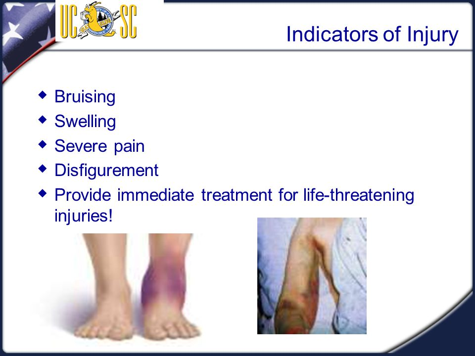 Visual 4.10 Indicators of Injury  Bruising  Swelling  Severe pain  Disfigurement  Provide immediate treatment for life-threatening injuries!