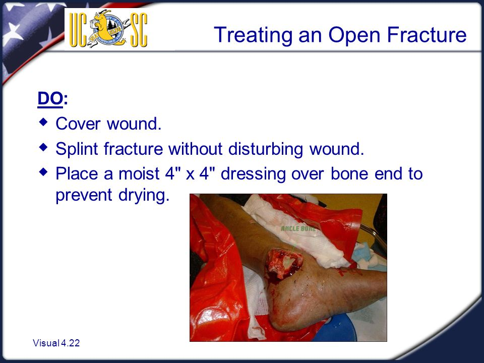 Visual 4.22 Treating an Open Fracture DO:  Cover wound.  Splint fracture without disturbing wound.  Place a moist 4