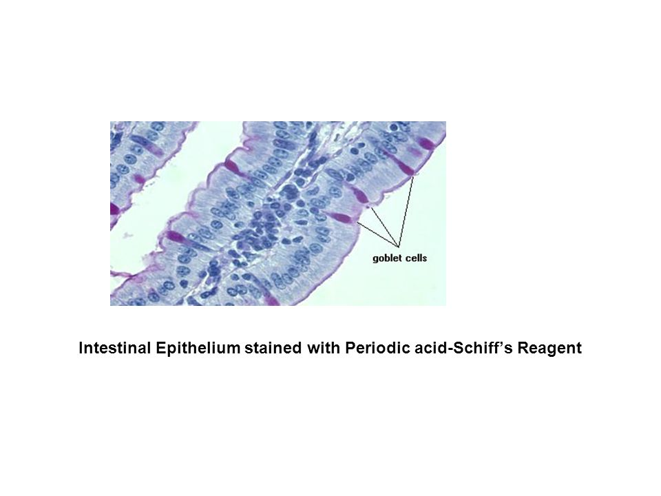 Intestinal Epithelium stained with Periodic acid-Schiff's Reagent