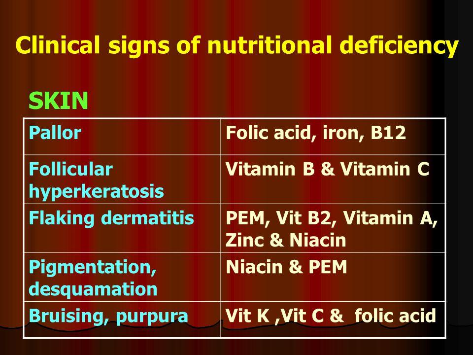 Clinical signs of nutritional deficiency SKIN Folic acid, iron, B12Pallor Vitamin B & Vitamin CFollicular hyperkeratosis PEM, Vit B2, Vitamin A, Zinc