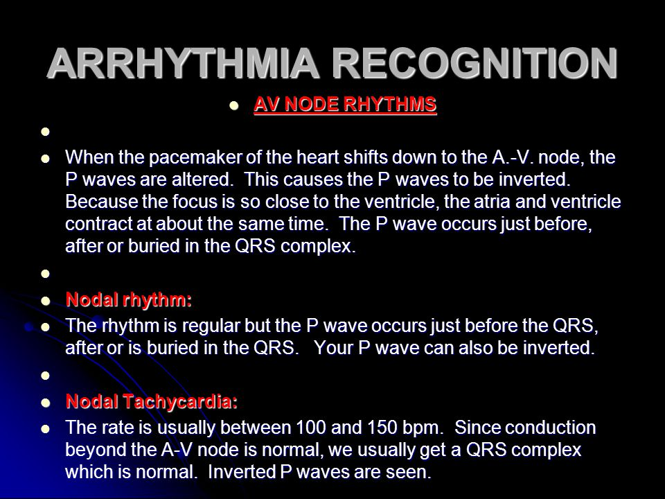ARRHYTHMIA RECOGNITION AV NODE RHYTHMS AV NODE RHYTHMS When the pacemaker of the heart shifts down to the A.-V. node, the P waves are altered. This ca