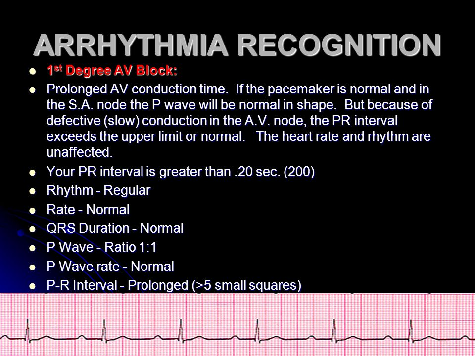 ARRHYTHMIA RECOGNITION 1 st Degree AV Block: 1 st Degree AV Block: Prolonged AV conduction time. If the pacemaker is normal and in the S.A. node the P