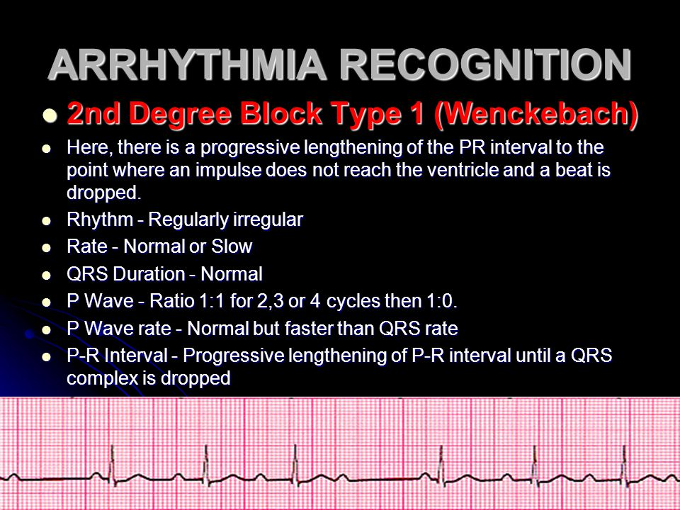 ARRHYTHMIA RECOGNITION 2nd Degree Block Type 1 (Wenckebach) 2nd Degree Block Type 1 (Wenckebach) Here, there is a progressive lengthening of the PR in