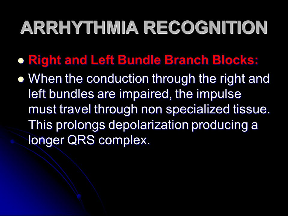 ARRHYTHMIA RECOGNITION Right and Left Bundle Branch Blocks: Right and Left Bundle Branch Blocks: When the conduction through the right and left bundle