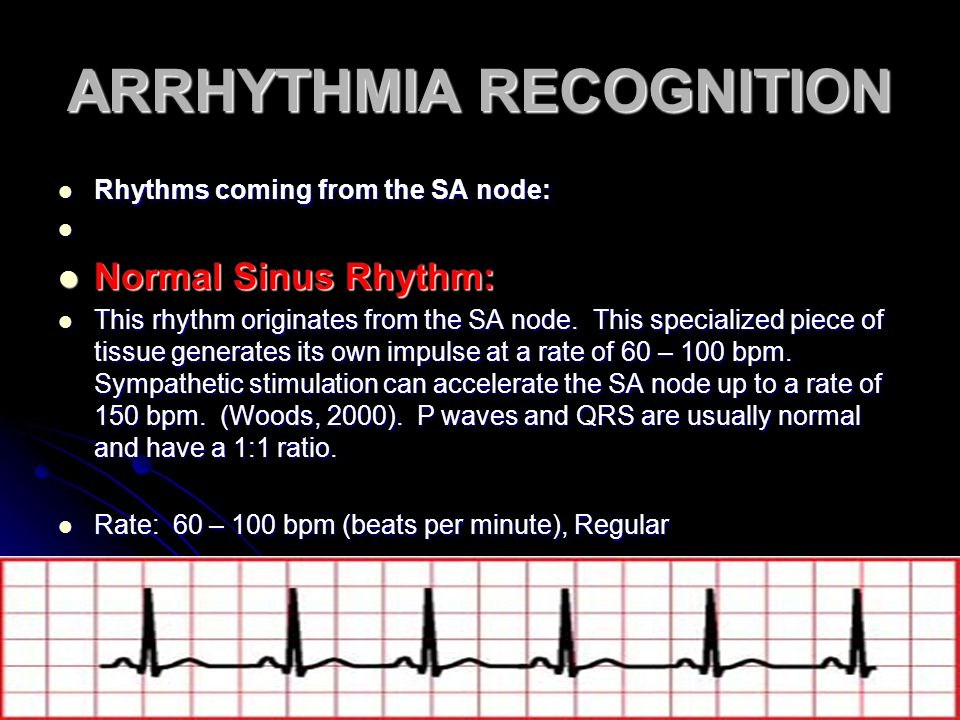 ARRHYTHMIA RECOGNITION Rhythms coming from the SA node: Rhythms coming from the SA node: Normal Sinus Rhythm: Normal Sinus Rhythm: This rhythm origina