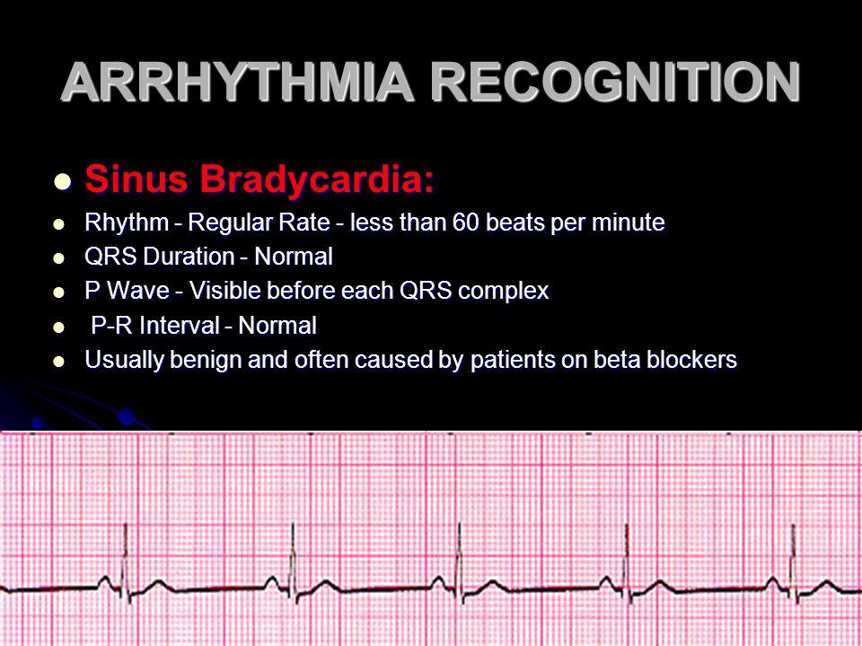 ARRHYTHMIA RECOGNITION Sinus Bradycardia: Sinus Bradycardia: Rhythm - Regular Rate - less than 60 beats per minute Rhythm - Regular Rate - less than 6