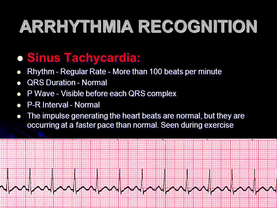 ARRHYTHMIA RECOGNITION Sinus Tachycardia: Sinus Tachycardia: Rhythm - Regular Rate - More than 100 beats per minute Rhythm - Regular Rate - More than