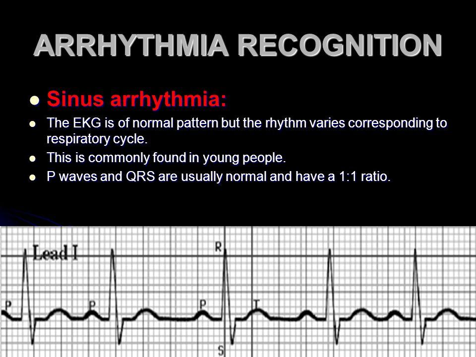 ARRHYTHMIA RECOGNITION Sinus arrhythmia: Sinus arrhythmia: The EKG is of normal pattern but the rhythm varies corresponding to respiratory cycle. The