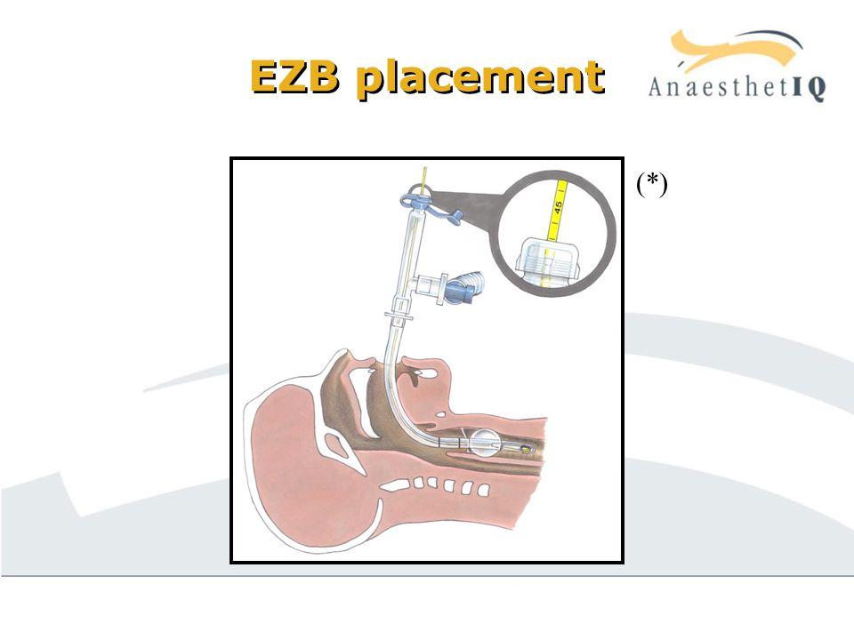 EZB placement (*)