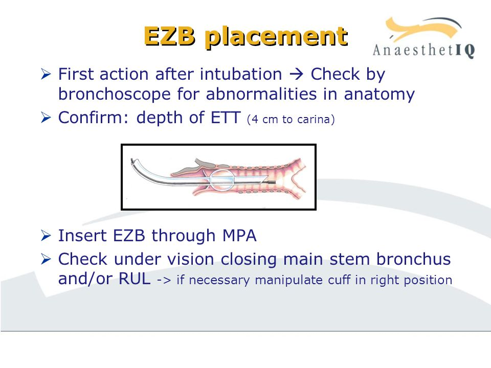 EZB placement  First action after intubation  Check by bronchoscope for abnormalities in anatomy  Confirm: depth of ETT (4 cm to carina)  Insert EZB through MPA  Check under vision closing main stem bronchus and/or RUL -> if necessary manipulate cuff in right position