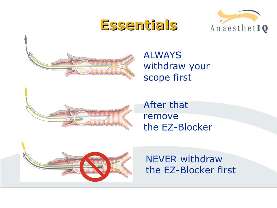 Essentials ALWAYS withdraw your scope first After that remove the EZ-Blocker NEVER withdraw the EZ-Blocker first