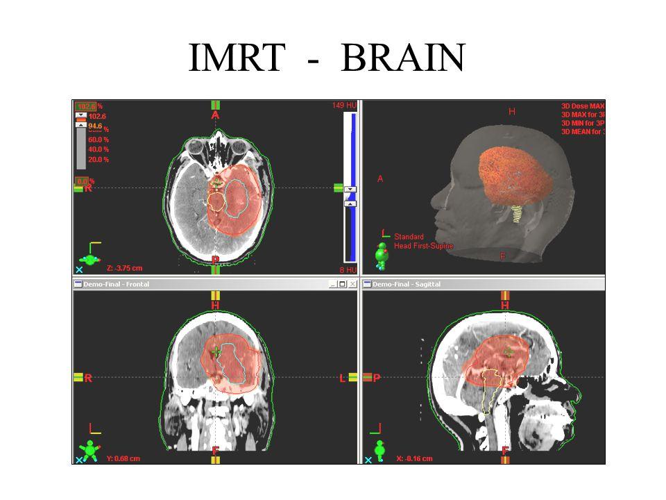 IMRT - BRAIN