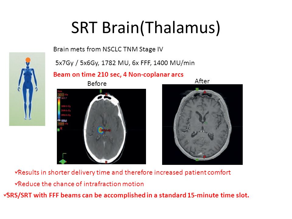 SRT Brain(Thalamus) Brain mets from NSCLC TNM Stage IV 5x7Gy / 5x6Gy, 1782 MU, 6x FFF, 1400 MU/min Beam on time 210 sec, 4 Non-coplanar arcs Before After Results in shorter delivery time and therefore increased patient comfort Reduce the chance of intrafraction motion SRS/SRT with FFF beams can be accomplished in a standard 15-minute time slot.