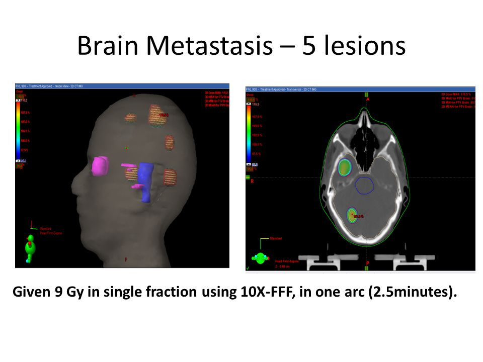 Brain Metastasis – 5 lesions Given 9 Gy in single fraction using 10X-FFF, in one arc (2.5minutes).