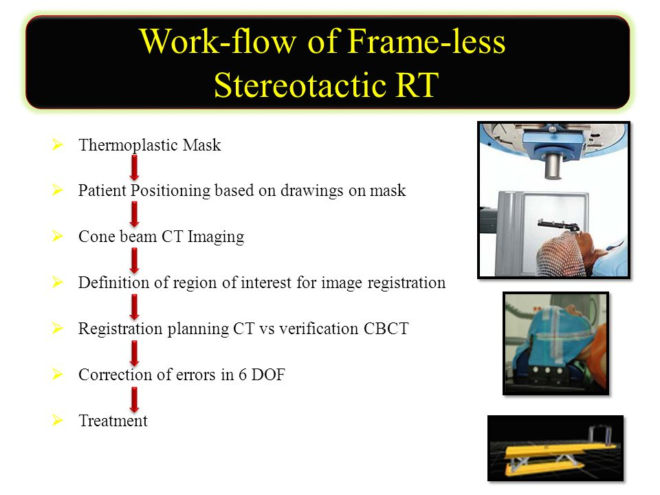 Work-flow of Frame-less Stereotactic RT  Thermoplastic Mask  Patient Positioning based on drawings on mask  Cone beam CT Imaging  Definition of region of interest for image registration  Registration planning CT vs verification CBCT  Correction of errors in 6 DOF  Treatment